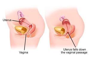 Urology San Diego - Female Prolapse Surgery