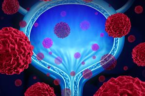 Urology San Diego - Urologic Cancer Care