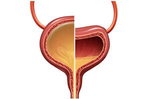 Urology San Diego - Overactive Bladder in Women