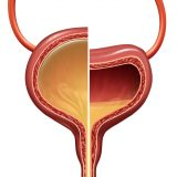 Bladder Comparison - Overactive and Normal